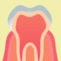 歯周病治療 / 歯周内科